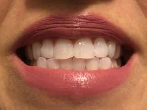 Review of Smile Brilliant's Teeth Whitening System